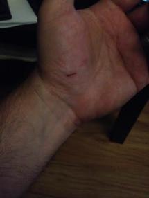 Left palm
